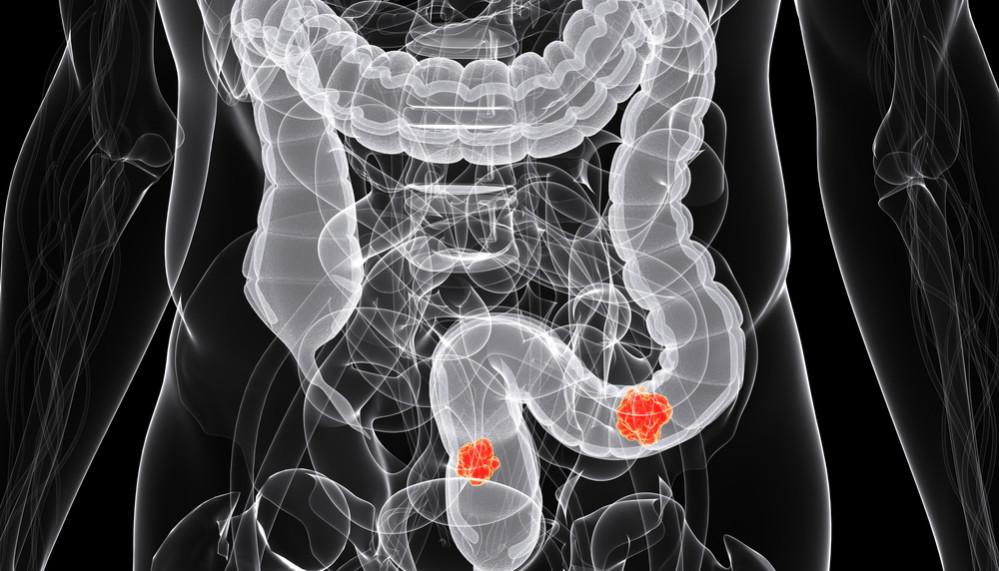 Для эффективного лечения рака кишечника нужен генетический анализ