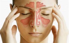 Что такое фронтит? Причины появления и симптомы