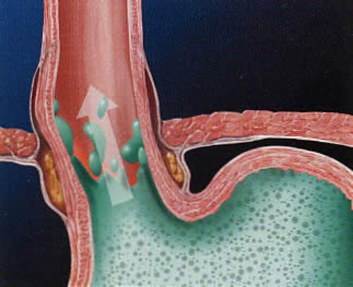 Витамины при гастроэзофагеальной рефлюксной болезни