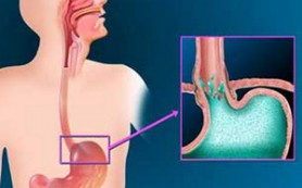 Вирус папилломы человека утраивает риск развития рака пищевода