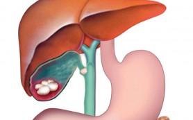 Витаминотерапия при бескаменном холецистите