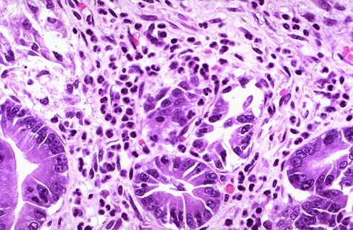 Хронический гастрит: диагностика и лечение