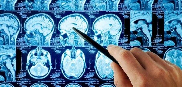 Консультация нейрохирурга