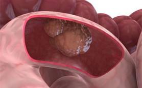 Ежедневный прием аспирина останавливает рак кишечника