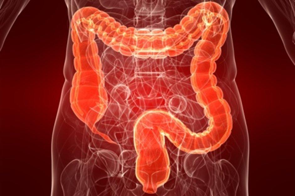 Что делать если у Вас проблемы с кишечником и частые запоры
