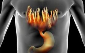 Длительная изжога говорит об опасном заболевании
