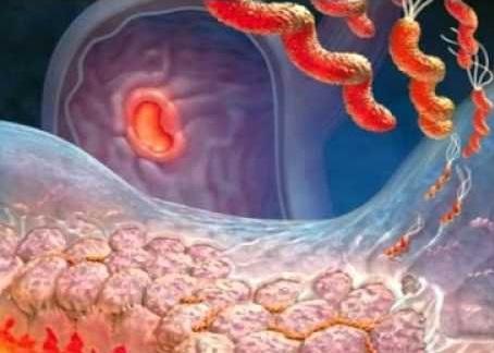 Типы хронического гастрита и причины его появления