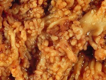 Обнаружена связь между язвенным колитом и населяющими кишечник грибками