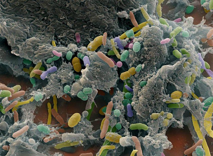 Ученые установили 3 типа кишечной микрофлоры человека