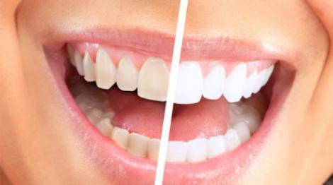 Профессиональная имплантация зубов в СПб