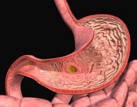 Травяные сборы при язве желудка