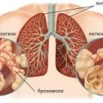Хроническое обструктивное заболевание легких и сердечно-сосудистые заболевания