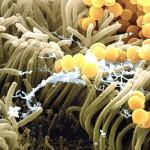 Вес зависит от бактерий кишечника