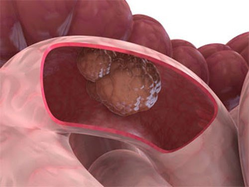 Как запах тухлых яиц связан с раком толстой кишки