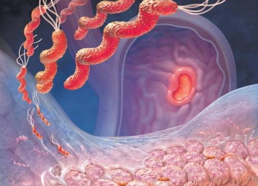Гастрит — более древняя болезнь, чем думали учёные