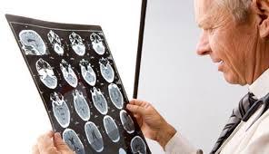 Детские неврологические заболевания