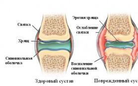 Натуральные средства для ревматоидного артрита