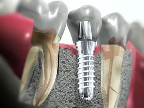 Зубные импланты в Москве. Цены и отзывы.