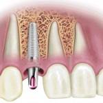 Израильская клиника Dr. KRUSH - имплантация зубов и иные стоматологические услуги по лояльной цене