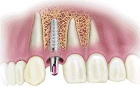 Израильская клиника Dr. KRUSH — имплантация зубов и иные стоматологические услуги по лояльной цене