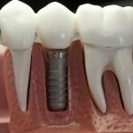 Сроки службы зубного имплантата