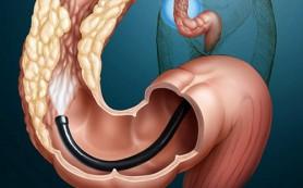 Симптомы токсического отравления толстой кишки и метод ее очистки