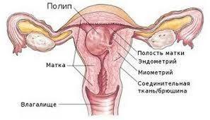 Полип шейки матки. Причины и симптомы.