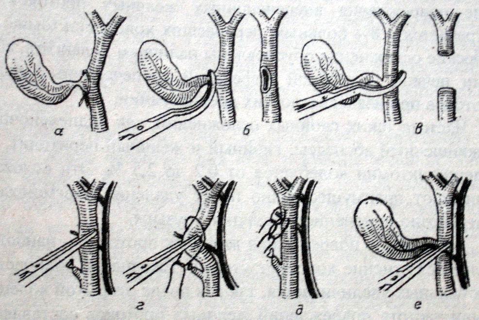 Повторные операции по поводу стриктуры желчных протоков