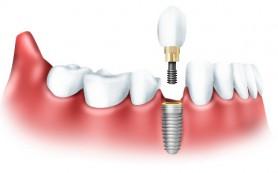 Протезирование зубов. Наука протезирования зубов