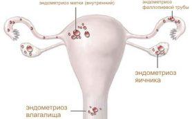Эндометриоз — актуальная проблема современной гинекологии