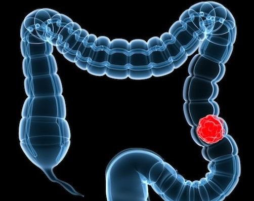 Операция оофорэктомии связана с риском развития рака толстой и прямой кишки