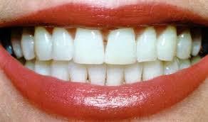 Зубы и красивая улыбка