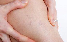 Варикозное расширение вен ног — причины и лечение