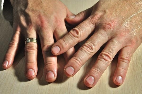 Длинные ноги у мужчин грозят раком кишечника