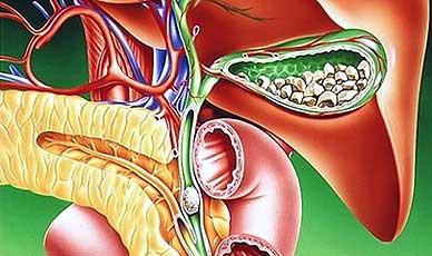 Желчнокаменная болезнь — причины, симптомы, лечение и профилактика