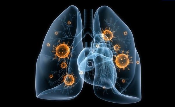Пневмония – это инфекционное воспаления легких