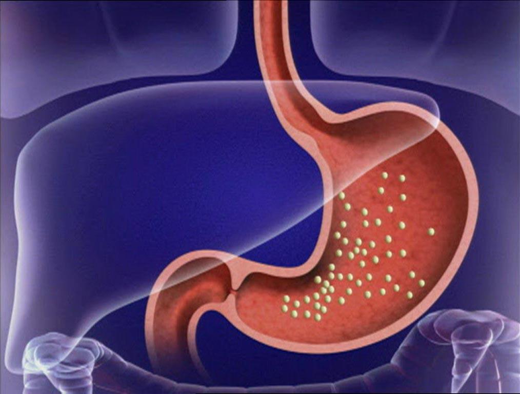 Диета при эрозивном гастрите – залог успешного лечения