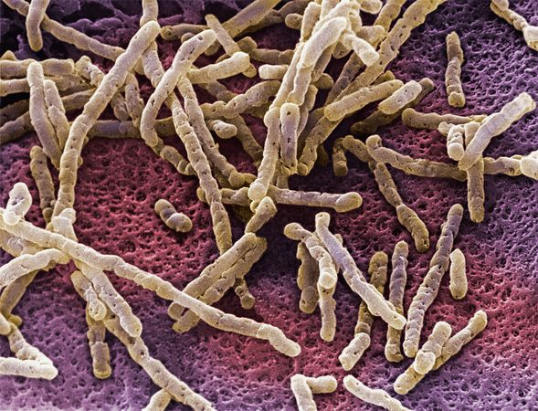 Ученые выяснили, что кишечные бактерии могут победить рак