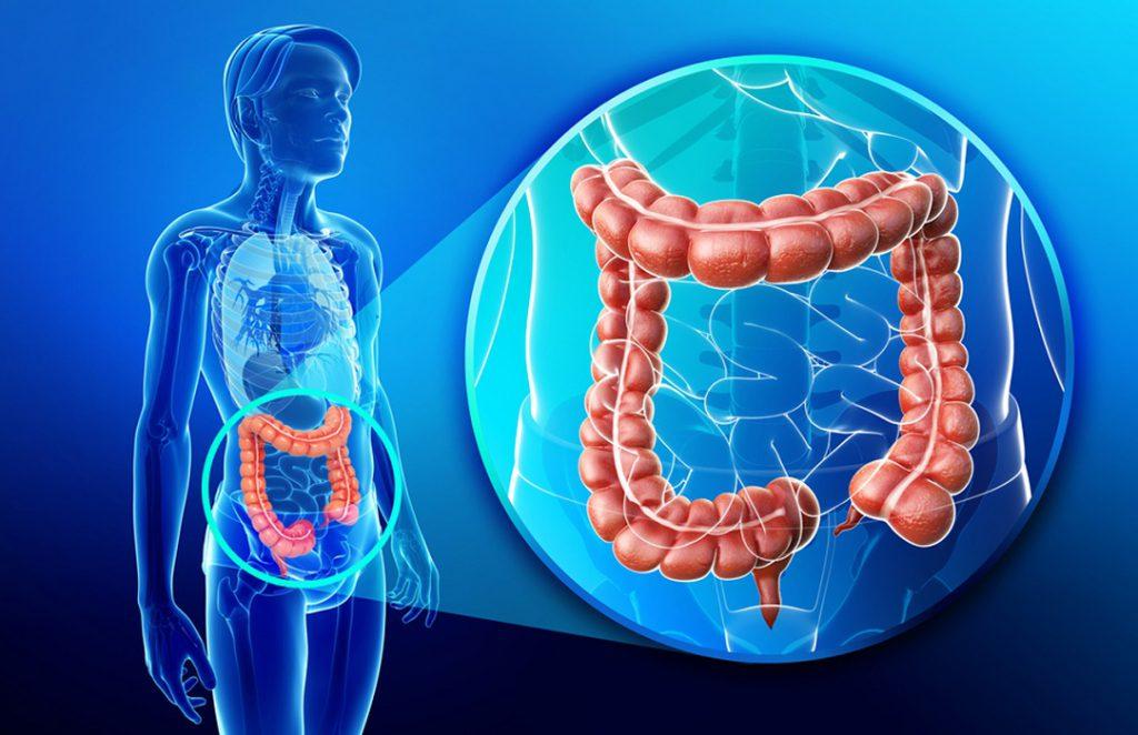 Ученые назвали одну из причин рака кишечника