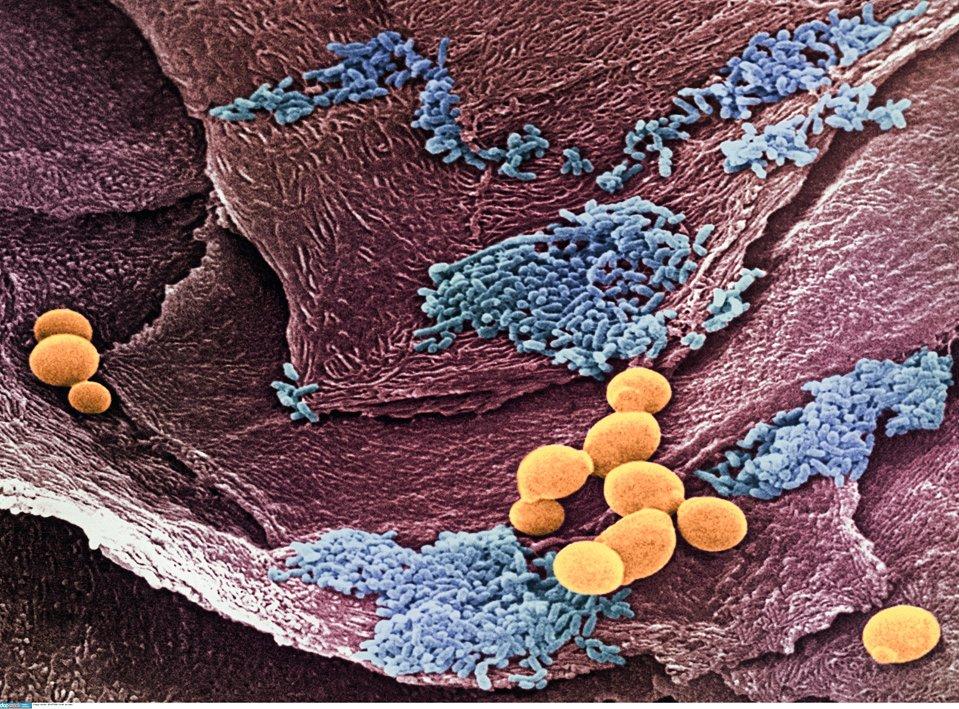 Вагинальный кандидоз: причины возникновения заболевания и возможные последствия