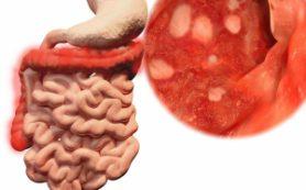 Эксперты: на развитие рака кишечника влияет не вес человека, а уровень инсулина