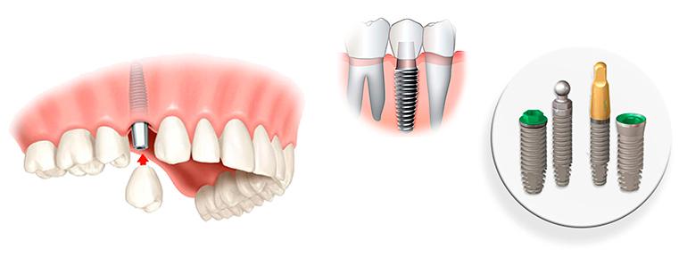 Имплантация зубов. Что это такое, противопоказания и показания