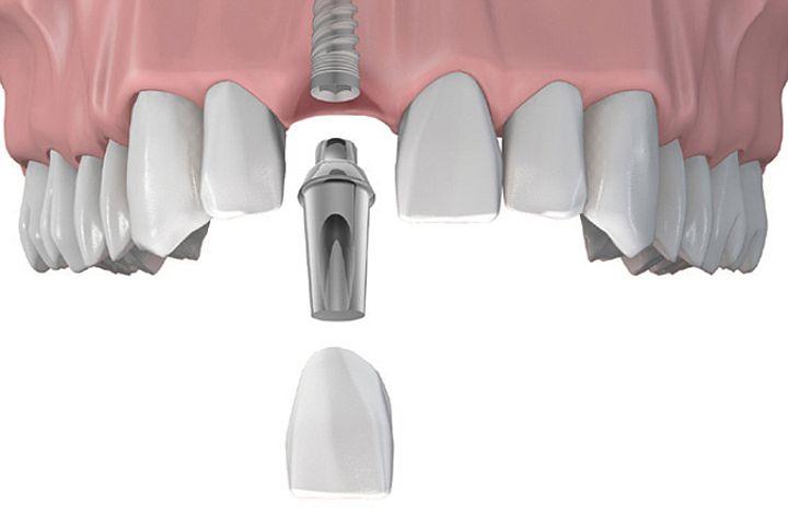 Особенности использования зубных имплантов