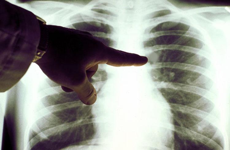 Симптомы и стадии рака легких