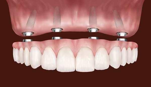 Современное протезирование при полном отсутствии зубов, этапы восстановления работы всей полости рта.