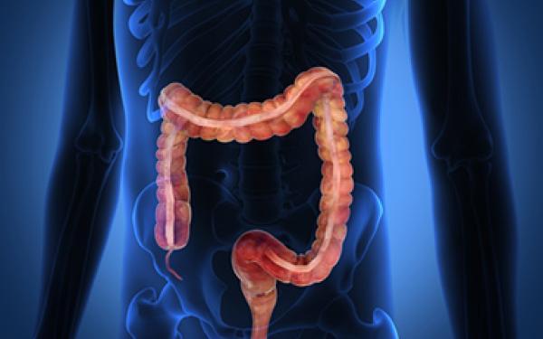 Дивертикулярная болезнь толстой кишки как фактор риска развития деменции