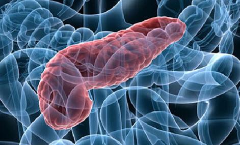 Что такое панкреатит?