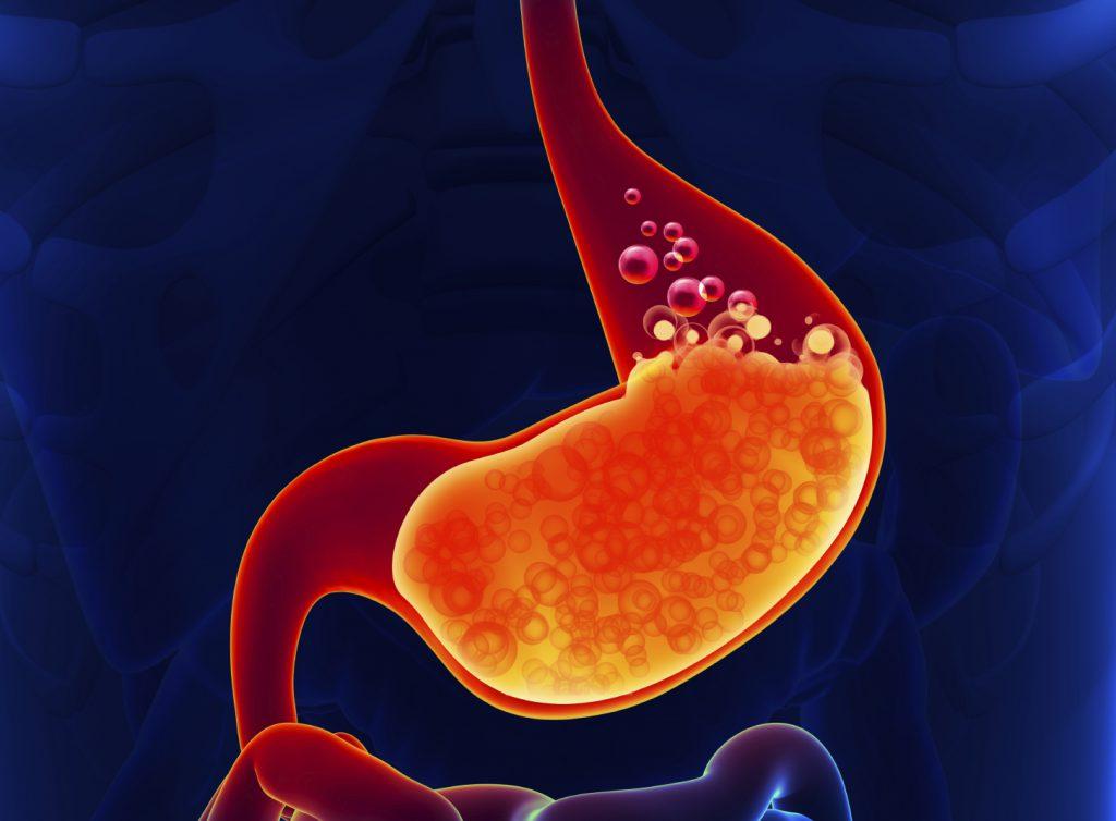 Снижение лишнего веса поможет в борьбе с изжогой