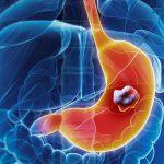 Рак желудка будут определять по дыханию
