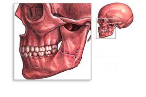 Что делать при переломе челюсти